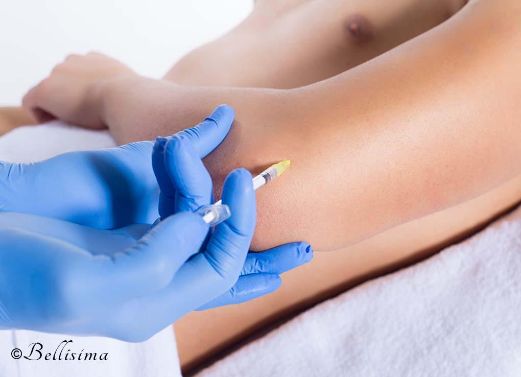 Mesoterapia-en-codo