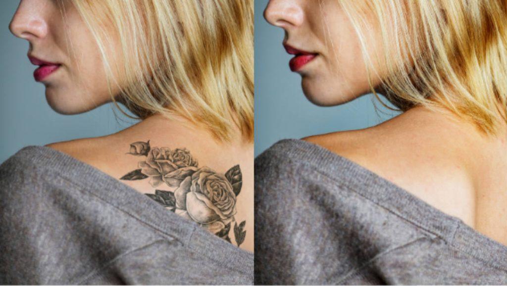 ANTES-DESPUES quitar tatuajes bellísima