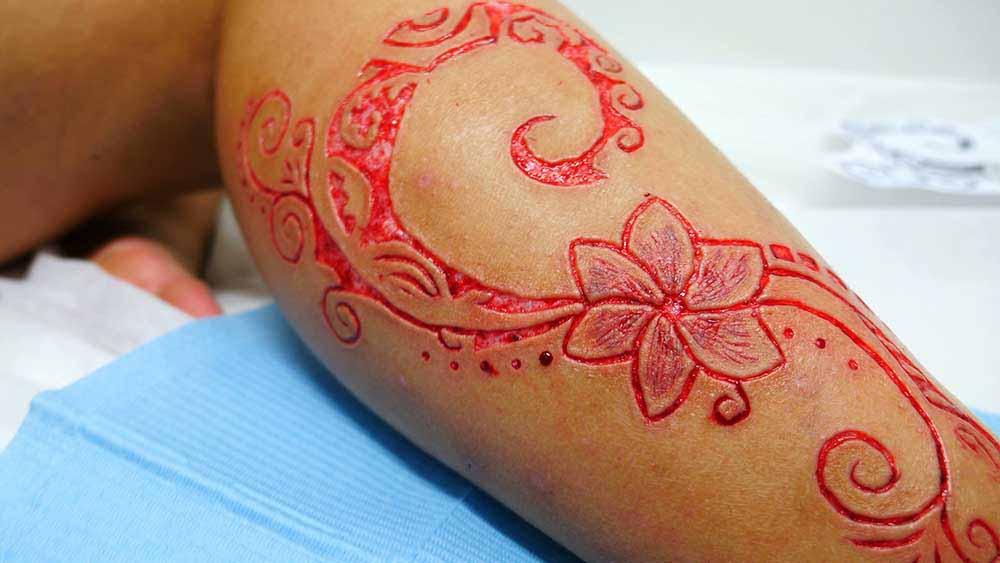 Cicatriz en tatuaje