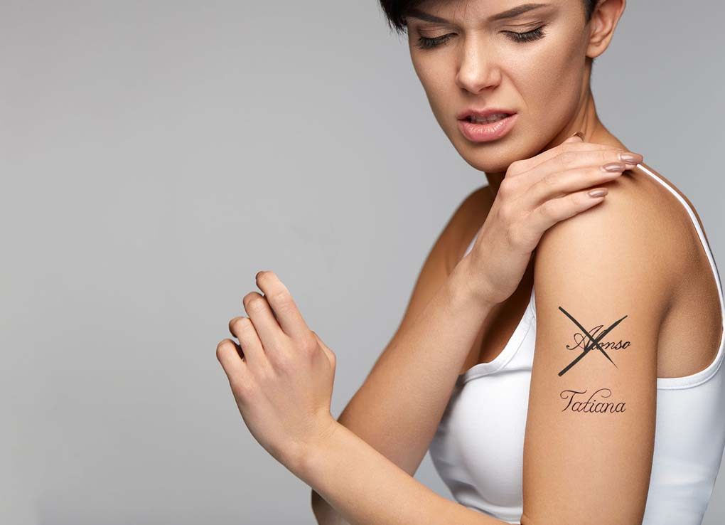 Quitar-tatuaje