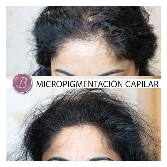 Redensificacion-capilar