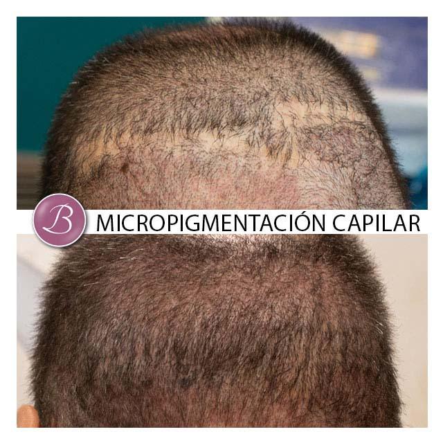 camuflaje-cicatrices-micropigmentacion