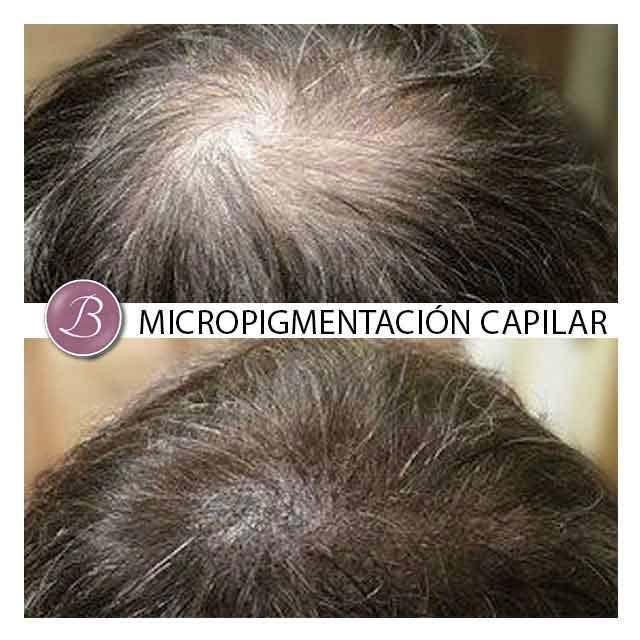 redensificacion-capilar-masculina